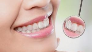 Dental Hygiene & Periodontal Care 1