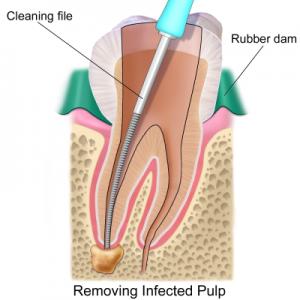 Technology - Rotary Endodontics